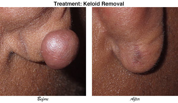 McCullom Keloid Removal 3